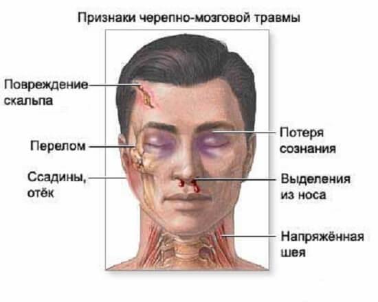 Различные черепно-мозговые травмы