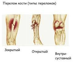 Переломы и их признаки