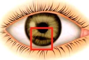 Тупые травмы глаза