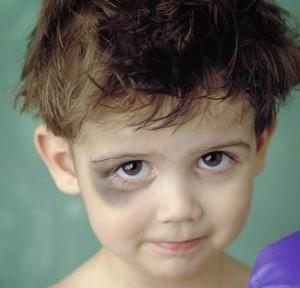 Травмированность глаз у детей