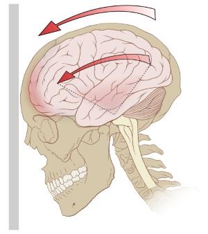 Особенности травмы