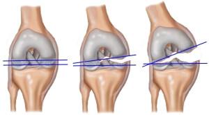 Виды травмы коленного сустава
