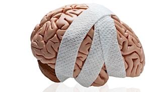 Тяжелая открытой черепно мозговой травмы