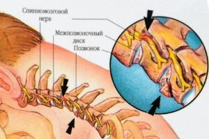 Последствия травмы шейного отдела