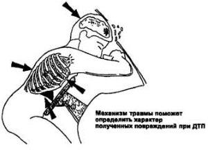 Травмы при ДТП