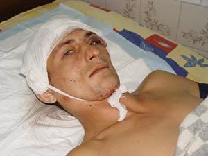 Пациент с травмой головы