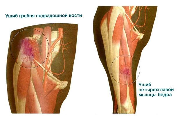 Ушибы мышц