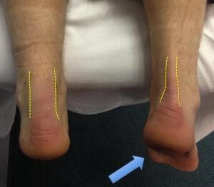 Поврежденное ахиллово сухожилие