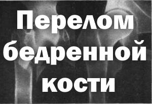 Перелом бедренной кости