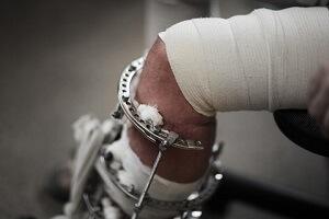 Лечение при травме