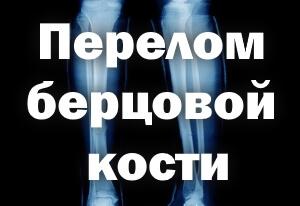 Перелом берцовой кости