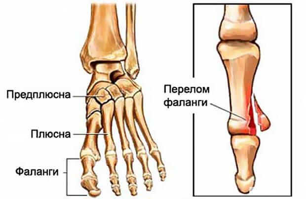 Трещина большого пальца ноги симптомы
