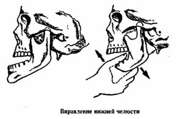 Правильное вправление челюсти