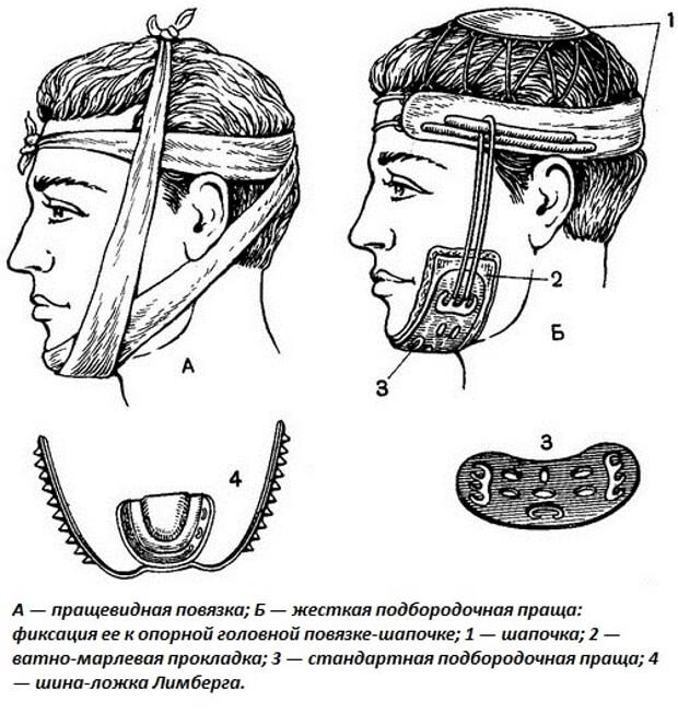 Первая медицинская помощь при переломе челюсти