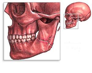 Двойное повреждение челюсти