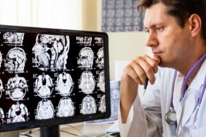 Исследования при сотрясении мозга