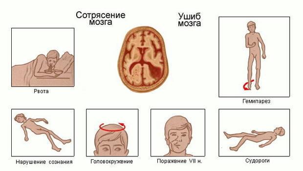 Симптомы ушиба и сотрясения мозга