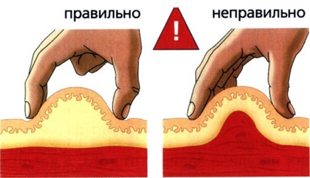Сбор складки кожи для инъекции