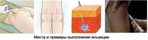 Места для инъекций