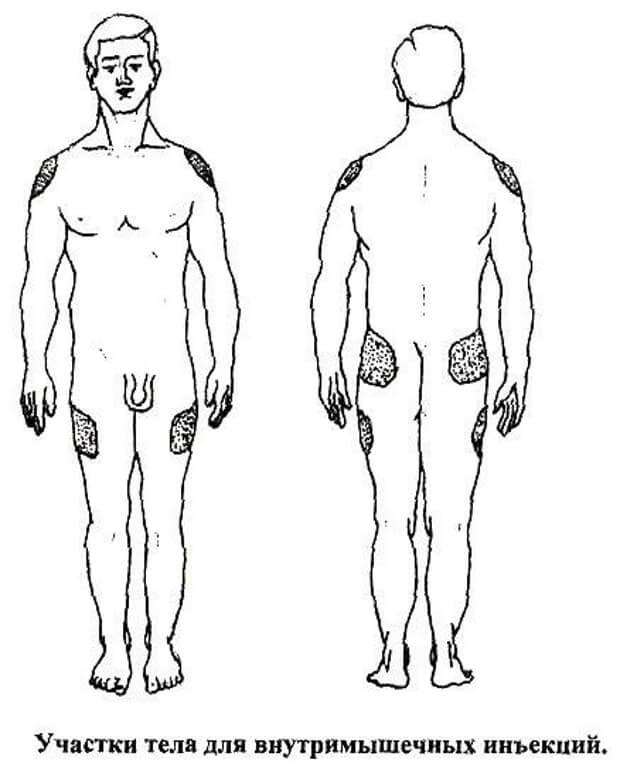 Участки тела для внутримышечных инъекций