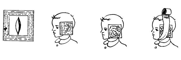 Наложение компресс на ухо
