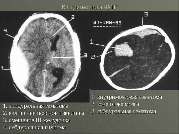 КТ диагностика гематомы мозга