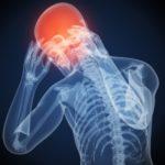 Острая боль в голове