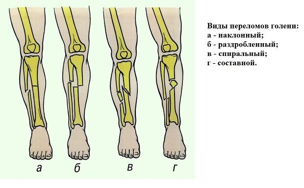 Виды переломов