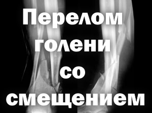 Кости на фото
