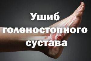 Лечение в домашних условиях ушиб голеностопного сустава 388