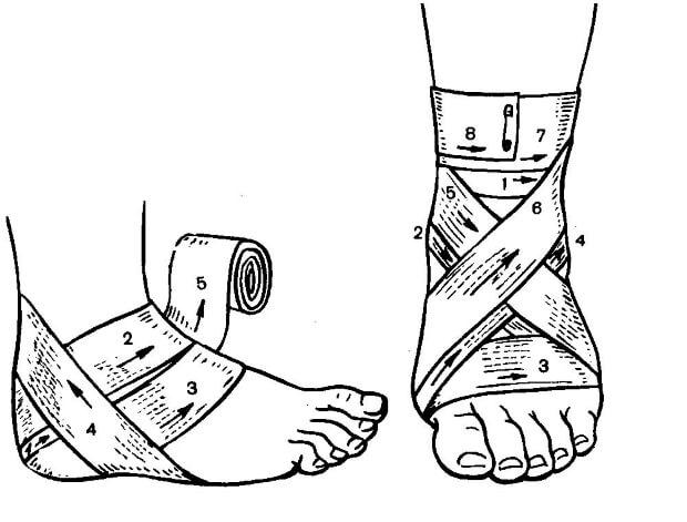 Тугая повязка на поврежденный сустав голени