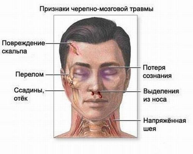 Симптомы сотрясения головного мозга
