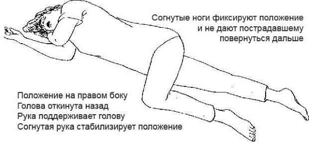 Положение тела при травме головного мозга