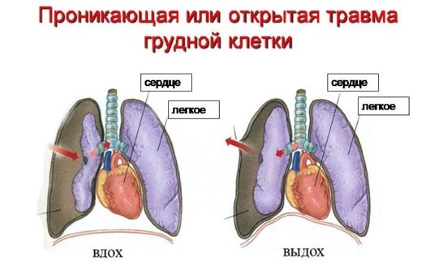 Открытая травма грудной клетки