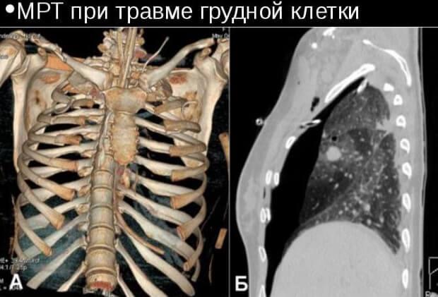МРТ при травме грудной клетки