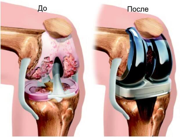 Изображение - Гематома после эндопротезирования коленного сустава jendoprotezirovanie-kolennogo-sustava-10