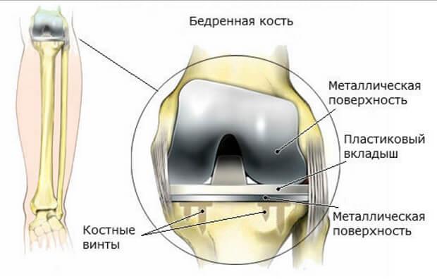 Эндопротез для сустава