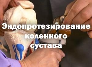 Изображение - Гематома после эндопротезирования коленного сустава jendoprotezirovanie-kolennogo-sustava-2