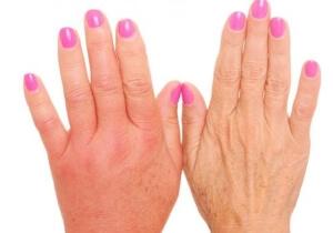 Опухоль рук