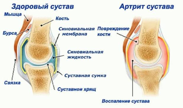 Артрит сустава пальца