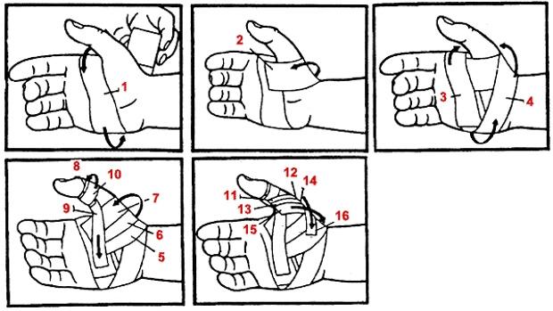 Наложение тугой повязки при вывихе руки