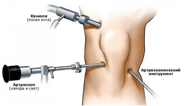 Артроскопия при лечении