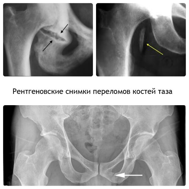 Рентгеновские снимки переломов костей таза