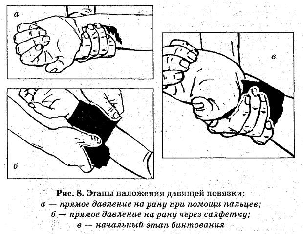 Правила наложения давящей повязки