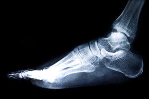 На рентгене