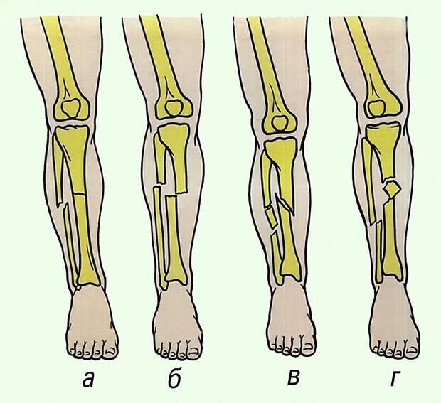 Сколько лежать в больнице и сколько заживает перелом лодыжки со смещением после операции с пластиной