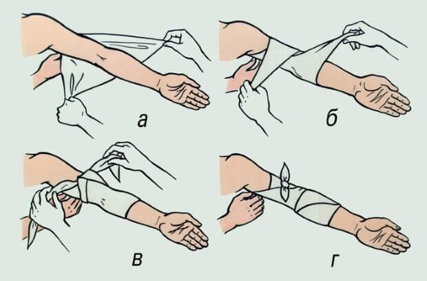 Косыночная повязка на локоть