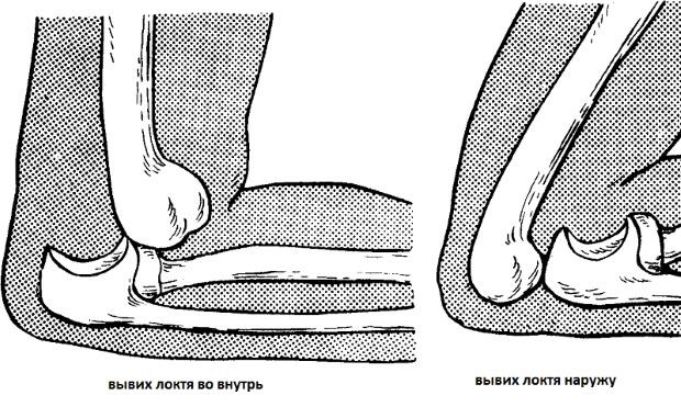 Как вправить локтевой сустав видео есле болят суставы