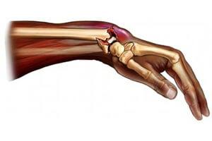 Неправильно сросшийся перелом лучевой кости со смещением