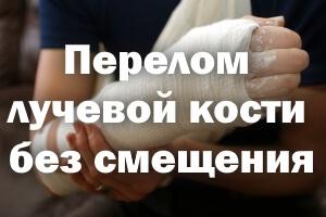 Перелом лучевой кости без смещения